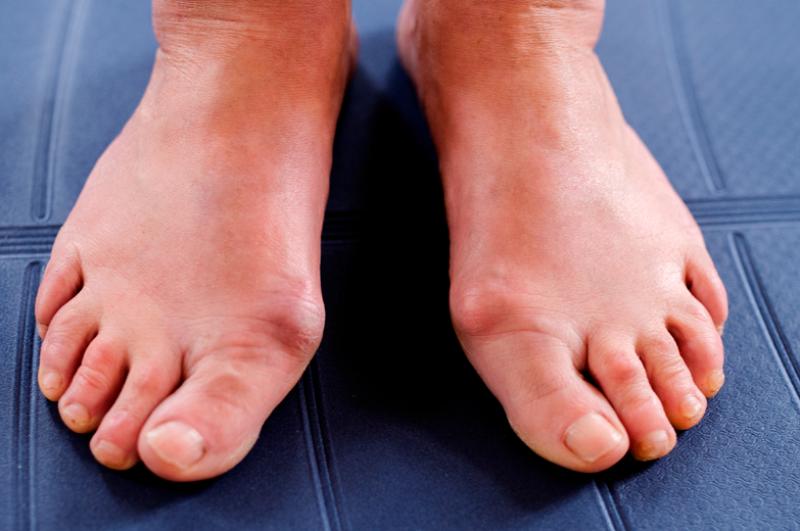 como-afecta-la-diabetes-a-los-pies