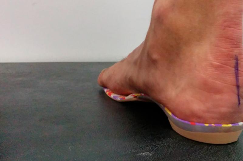 plantillas-para-los-pies-personalizadas