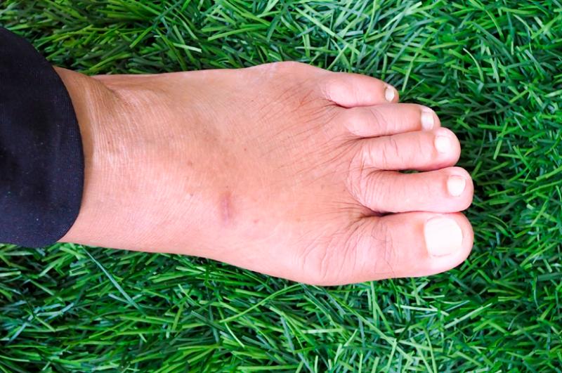 reducir-la-inflamacion-pies